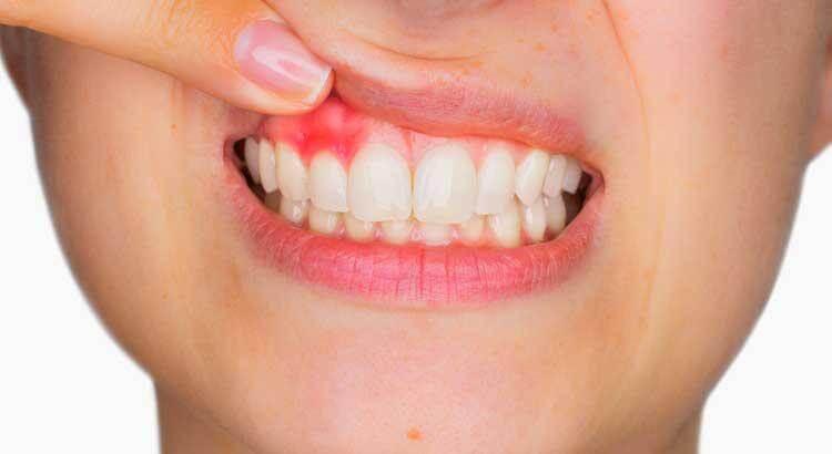 penyebab gusi bengkak karena gingvitis